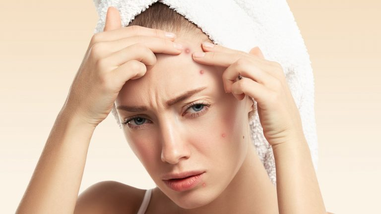 How to battle Acne and win?